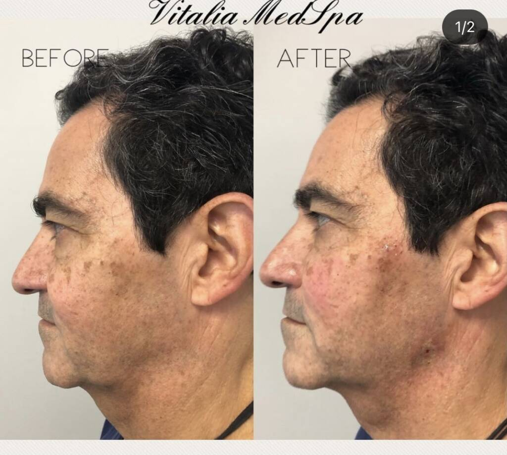 before and after non-surgical threadlift facelift northern virginia