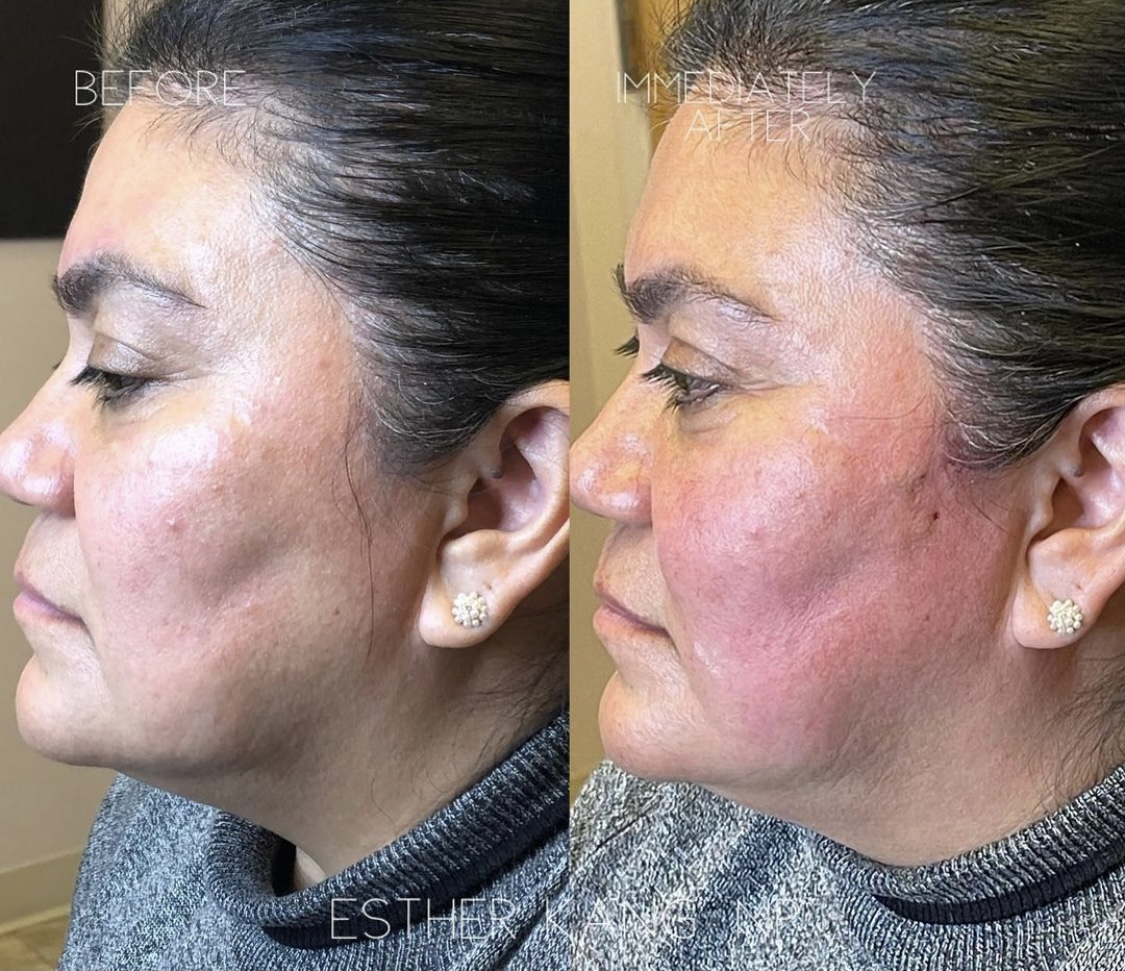 before and after non-surgical threadlift facelift falls church