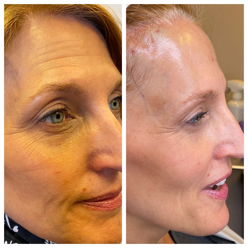 non-surgical threadlift before and after northern virginia