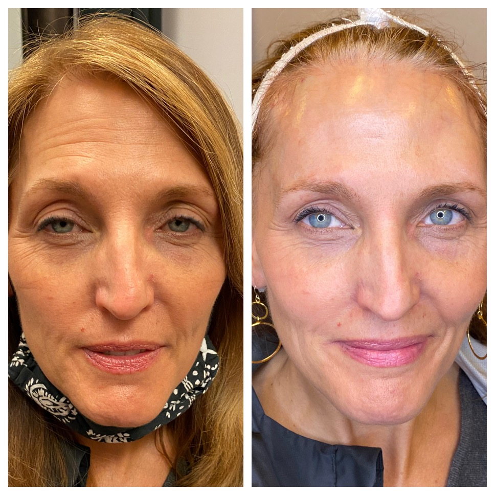 mini facelift before and after northern virginia