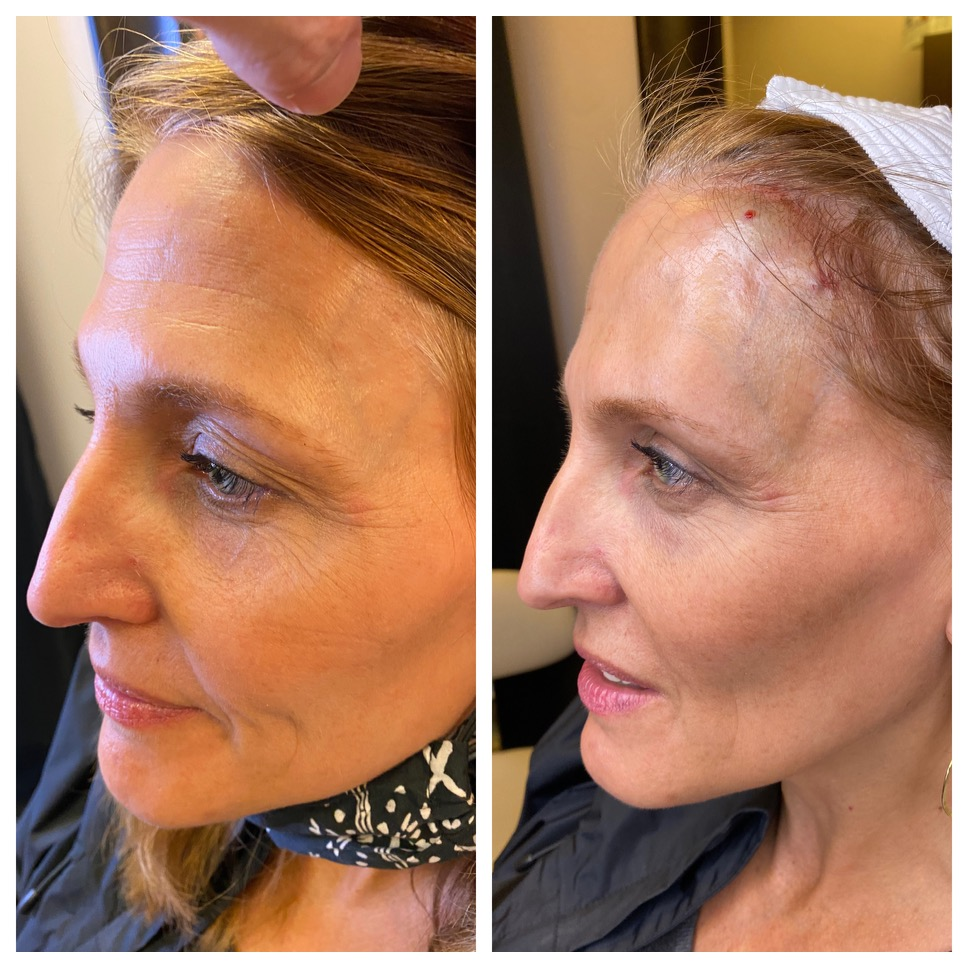 non-surgical facelift before and after northern virginia