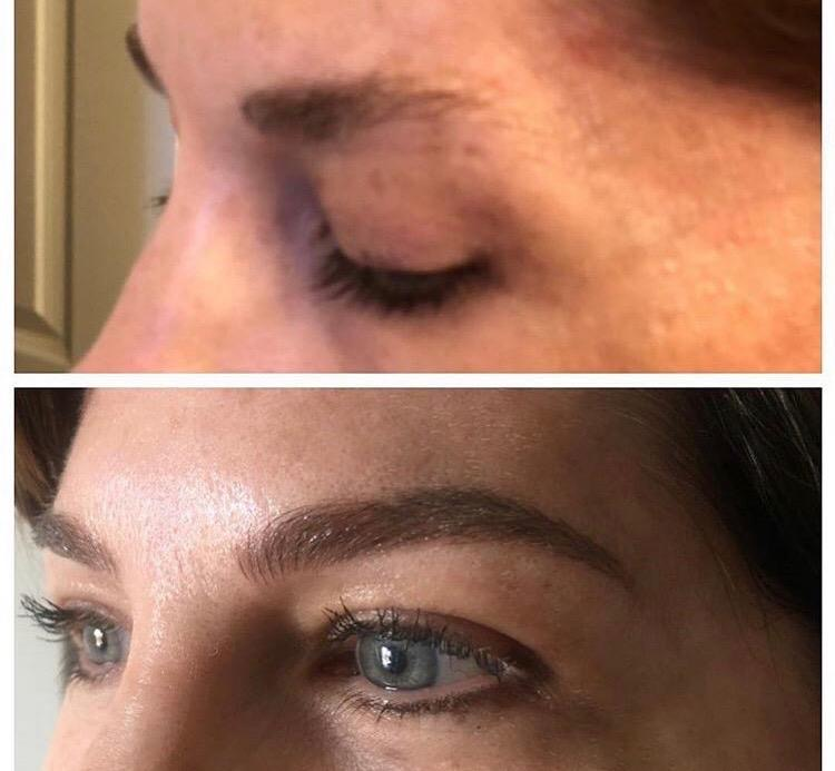 eyebrow microblading mclean