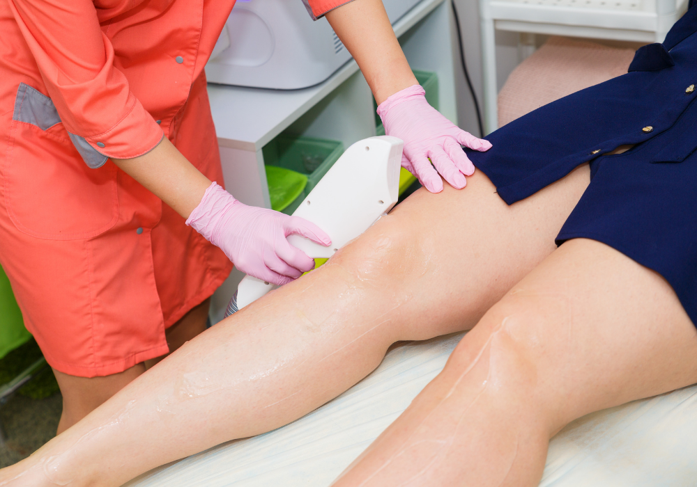 fall laser hair removal in northern virginia