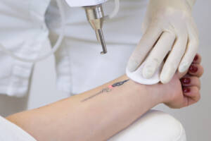 laser Tattoo Removal northern virginia