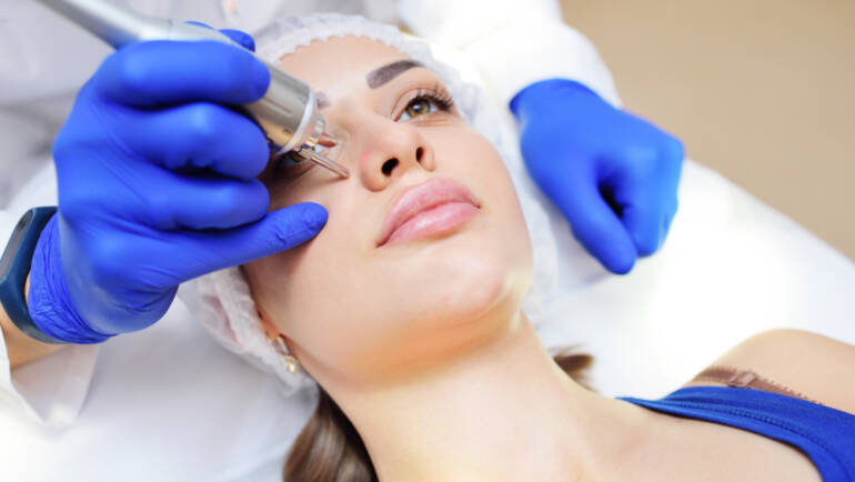 microneedling falls church