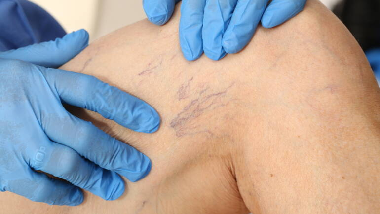 Spider Vein Treatments falls church