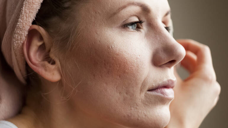 Acne Scar Treatments falls church